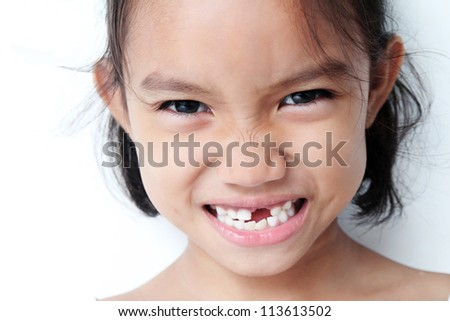 Young girl showing a missing teeth. - stock photo