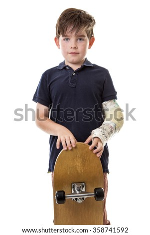 Young lad cant use his skateboard as he has broken his left arm. - stock photo