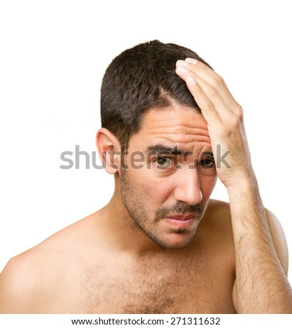 Young man concerned about hair loss - stock photo