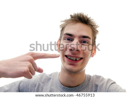Young man gives a huge smile showing off his braces on his crooked teeth. Isolated on white background with room for your text - stock photo