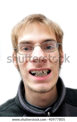 Young man trying to smile with braces - stock photo