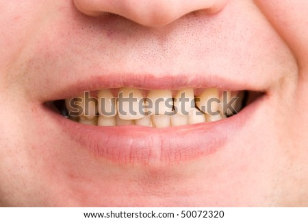 dating a guy with yellow teeth Here are the top 10 reasons why ladies hate smokers and your date nights a girl doesn't want a man that teeth causing them to look yellow.