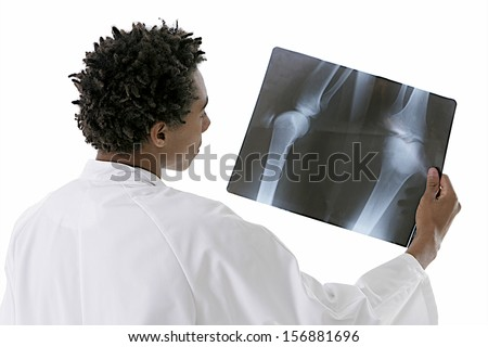 young mulatto doctor holding a lower limb radiography - stock photo
