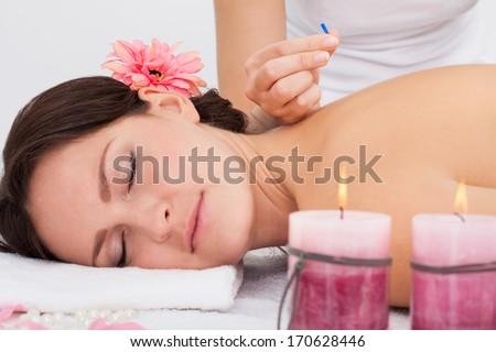 Young Woman Lying On Massage Table Getting Acupuncture Therapy From Masseuse - stock photo