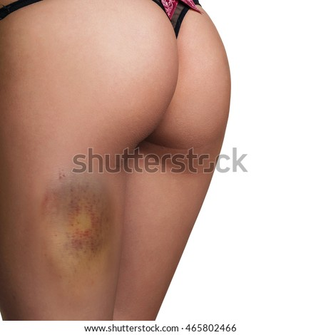 Young woman with a hematoma on hip