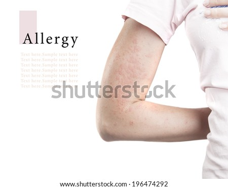 Young woman with allergy rash on hand isolated on white background - stock photo