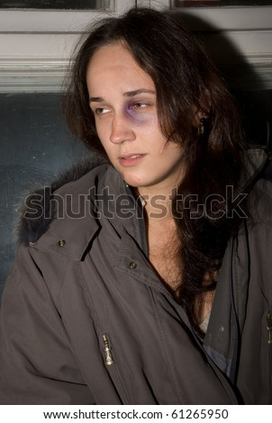 Young woman with halloween male up (fake cicatrice and bruise) - stock photo