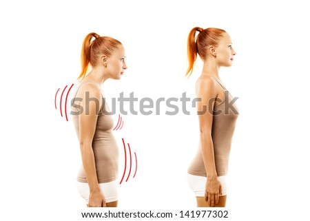 Young woman with position defect and ideal bearing on white background - stock photo