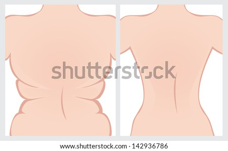 Back before and after treatment. Vector image. - stock vector