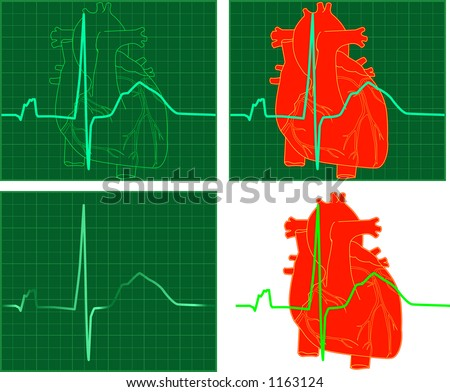 4 graphic representations of an EKG or ECG