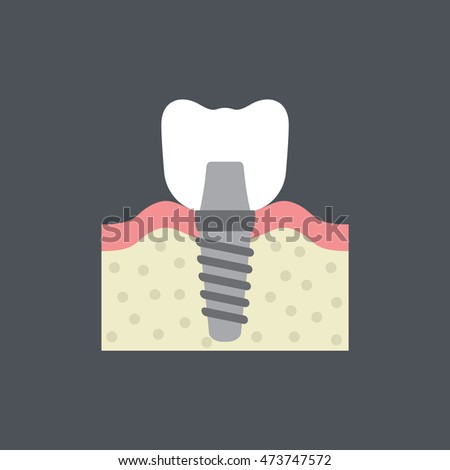 a molar dental implant icon in flat style