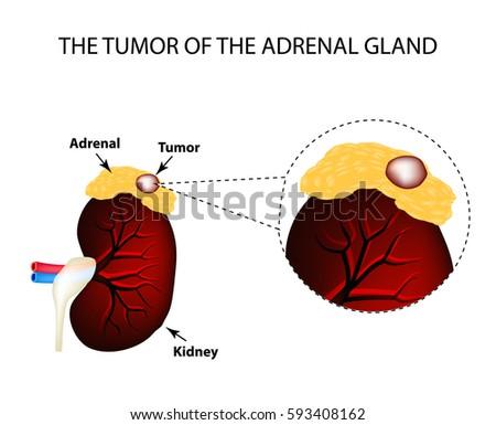 Tumor Adrenal Gland Structure Kidneys Vector Stock Vector Hd