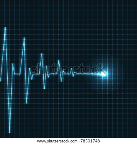 Heartbeat Monitor Stock Images Royalty Free Images
