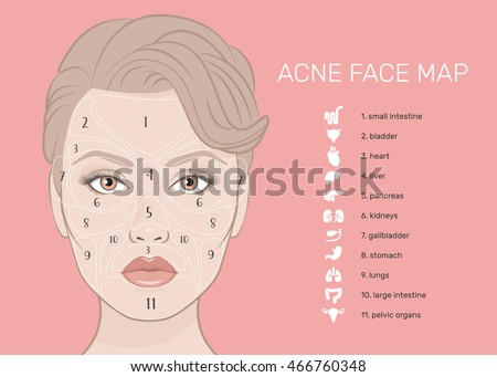 Acne Face Map Vector Illustration Beauty Stock Vector 466760348 ...