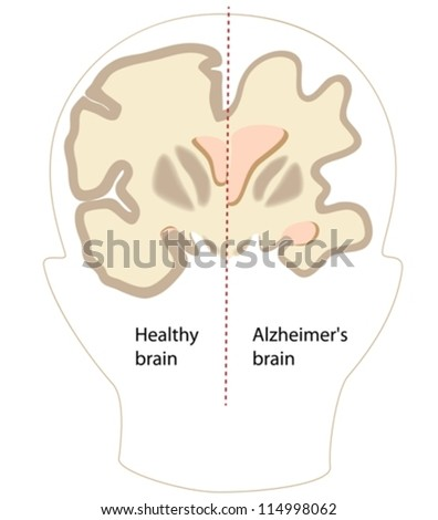 Alzheimer's disease brain compared to normal - stock vector