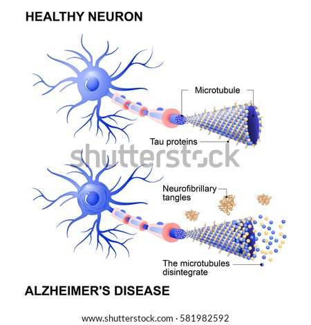 the changing mind of alzheimers disease Alzheimer's disease facts and figures report – get the latest statistics on the impact of alzheimer's and dementia in the united states.