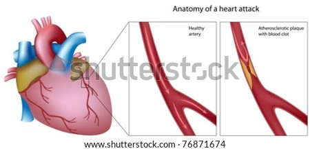 Anatomy of a heart attack - stock vector