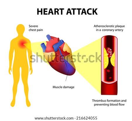 Anatomy heart attack diagram myocardial infarction stock vector hd anatomy heart attack diagram myocardial infarction stock vector hd royalty free 216624055 shutterstock ccuart Choice Image