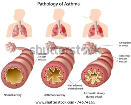 Anatomy of Asthma - stock vector