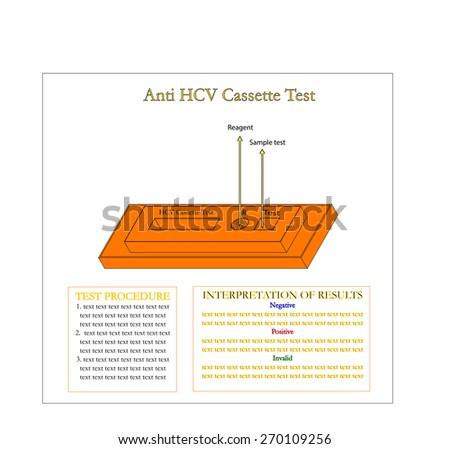 Anti Hepatitis C virus cassette for laboratory test,Vector - stock vector