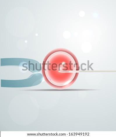 Artificial fertilization. Intracytoplasmic Sperm Injection. Medical illustration. - stock vector