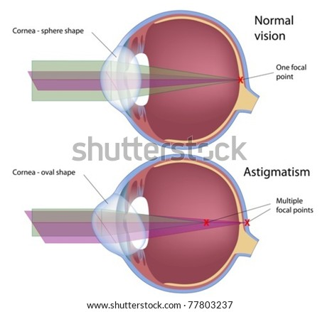 Astigmatism, a common eye defect - stock vector