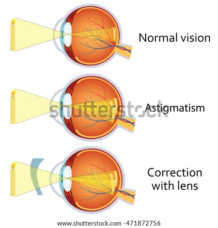 Astigmatism corrected by a cylindrical lens. Eyesight problem, blurred vision. Anatomy of the eye, cross section.