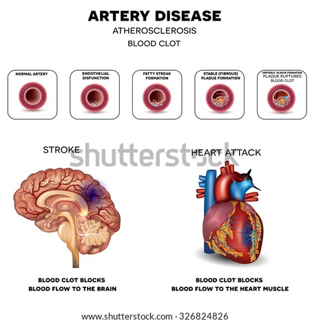 Atherosclerosis progression till Stroke and Heart attack. Fatty plaque develops on the inside of the artery.