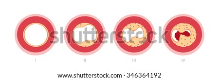 Atherosclerosis stages in artery caused by cholesterol plaque - stock vector