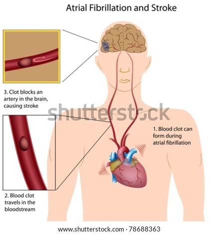 Atrial fibrillation and stroke - stock vector