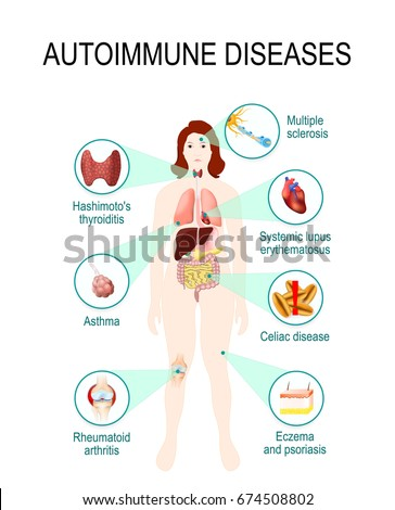 autoimmune diseases tissues human body affected stock vector, Muscles