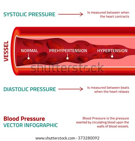 Blood Pressure Infographic - stock vector