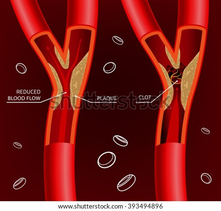 Blood Vein Image - stock vector