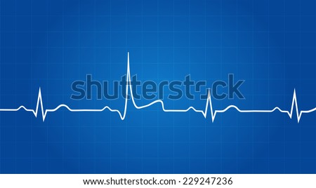 Blueprint Of Heart Attack On Electrocardiogram - stock vector