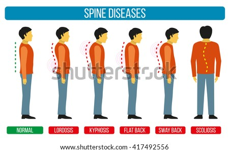 Body posture defect. Infographics of spine diseases. Scoliosis and lordosis medical diagrams. Backbone, diagnostic symptom. Vector illustration - stock vector