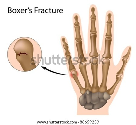 Boxer's fracture, the most common finger fracture - stock vector