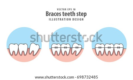 Braces teeth step circle illustration vector stock vector 698732485 braces teeth step circle illustration vector stock vector 698732485 shutterstock ccuart Choice Image