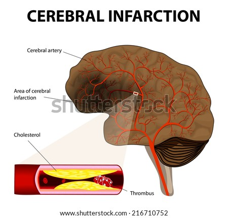 brain stroke. Cerebral infarction. the obstruction is caused by a blood clot that forms in a cerebral artery, at an atheromatous plaque. - stock vector