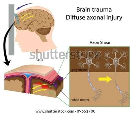 Brain trauma with axon shear (car accident, shaken baby syndrome,..) - stock vector