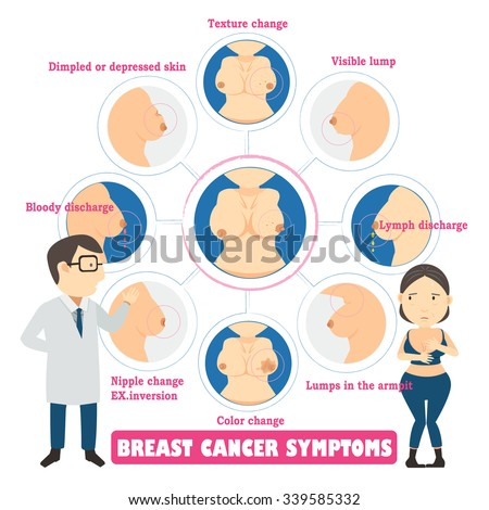 Breast cancer symptoms in circles,info graphic vector illustration. - stock vector