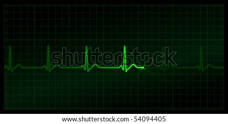 Cardiogram on the monitor. Green heartbeat line at black background. Vector medicine Illustration