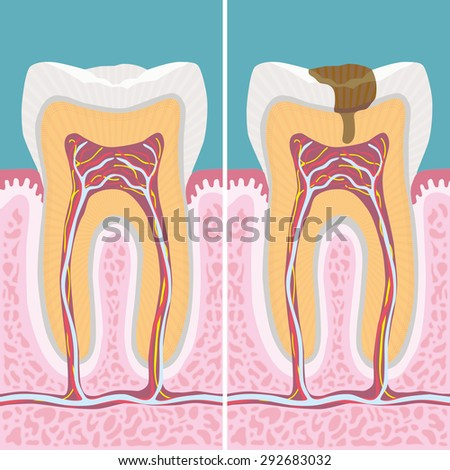 Carious human tooth cross section - stock vector