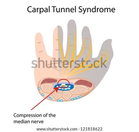 Carpal tunnel syndrome - stock vector