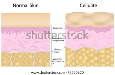 Cellulite versus smooth skin - stock vector