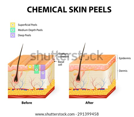 Chemical Peeling Procedure Chemexfoliation Human Skin Stock Vector