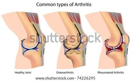 Common types of arthritis - stock vector