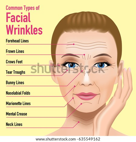 Remarkable idea Facial lines and wrinkles
