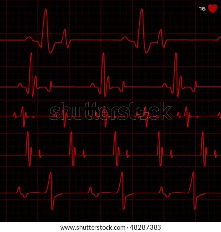 complete set of cardiograms - stock vector