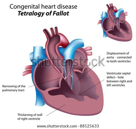 Congenital heart disease : Tetralogy of Fallot - stock vector