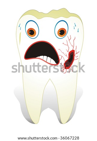 Decayed Molar Tooth - stock vector